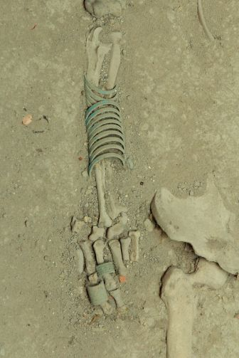 Bones by Dr.Narin Sapaisarn